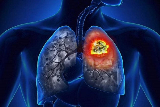 Fatal Lung Disease Encounter a Challenge