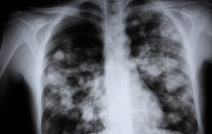 Vaping Cause Lung Disease
